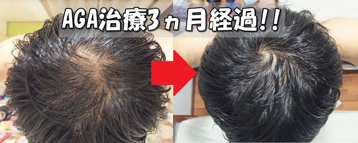 AGA治療開始前と3ヵ月後比較 てっぺんハゲ