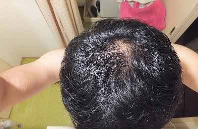 AGA治療開始時の頭頂部ハゲ