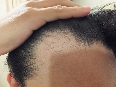 AGA治療開始時の自分の前髪生え際