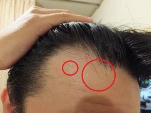 前髪の生え際が後退してきた:ハゲてきた