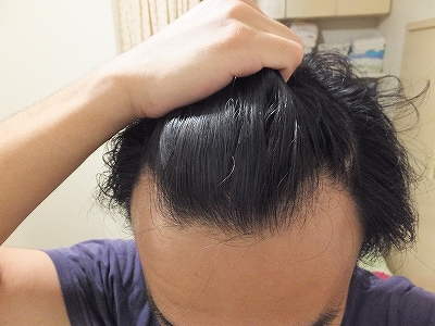 AGA治療開始前の前髪生え際(M字ハゲ)