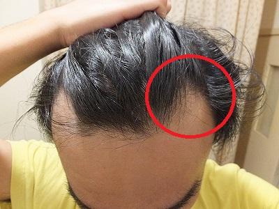 AGA治療後:初期脱毛経験時,M字ハゲ