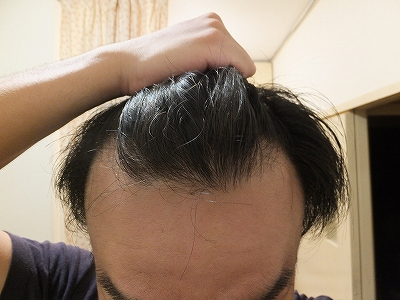 AGA進行によるM字ハゲ:前髪後退