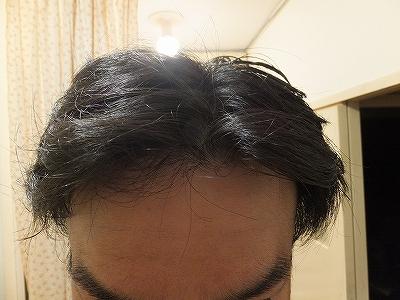 AGA進行によるM字ハゲを隠す髪型