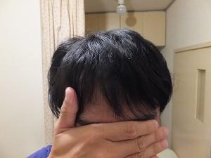 AGAにより進行したM字ハゲが隠れている髪型
