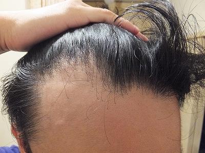 AGA治療開始1か月後の前髪生え際