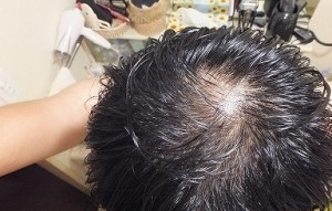 AGA進行による頭頂部ハゲ
