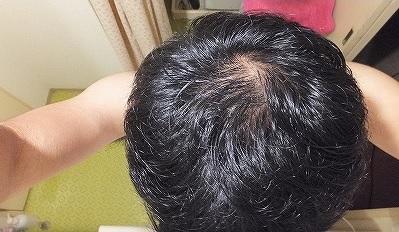 AGA治療開始前の頭頂部ハゲ:つむじハゲ