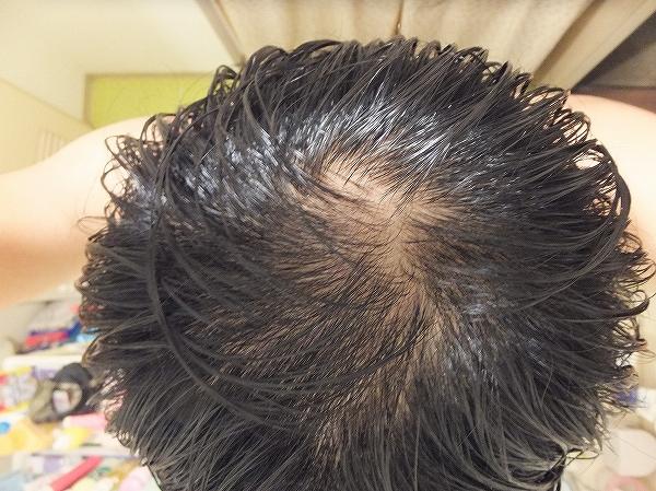 AGA治療開始前の頭頂部:つむじハゲ
