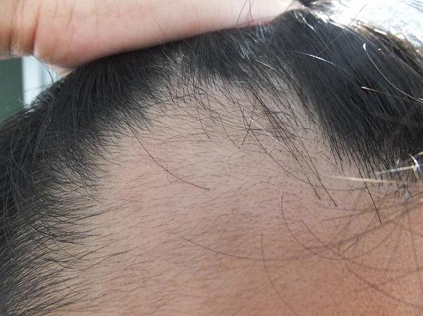 AGA治療開始1か月半後の前髪生え際:効果が出てきた!