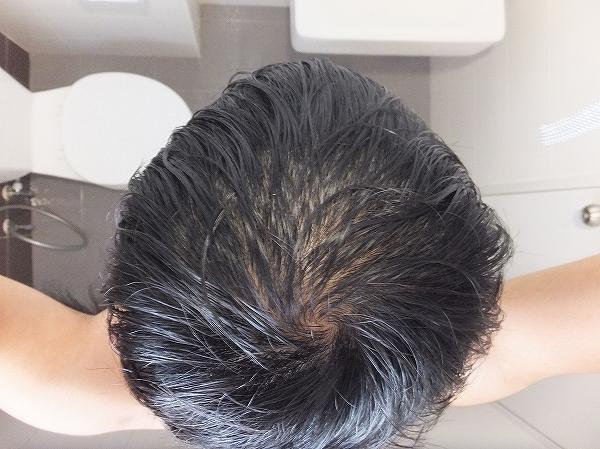 AGA治療開始1か月半後の頭頂部ハゲ