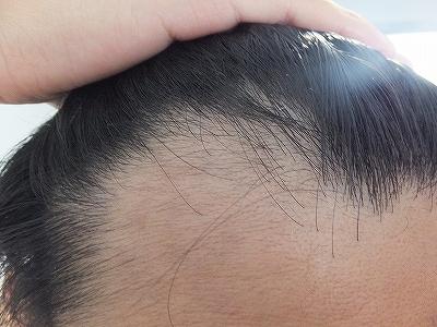M字ハゲ,AGA治療で産毛が生えてきた!