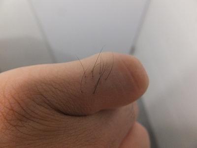 AGA治療:ミノキシジルの影響でムダ毛も濃くなった