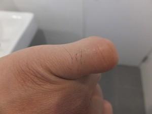 AGA治療:ミノキシジルの効果で体毛が濃くなった