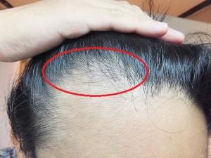 AGA治療開始2か月:発毛が感じられるM字ハゲ部分