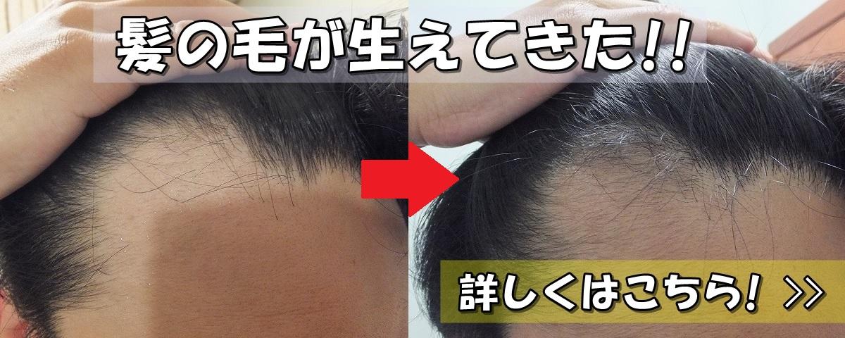 髪の毛が生えてきた! AGA治療開始前と3ヵ月後 M字ハゲ