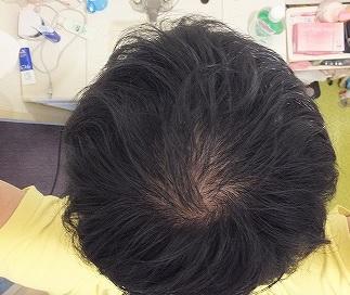 頭頂部:つむじがハゲてる頭