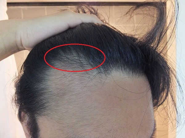 AGA治療開始2か月半:M字ハゲ部分がドンドン濃くなる!産毛が生える