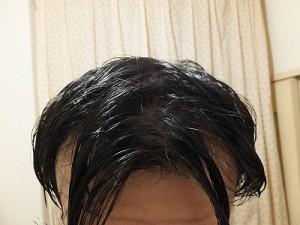 運動後の髪の毛、汗でハゲが目立ってしまっています