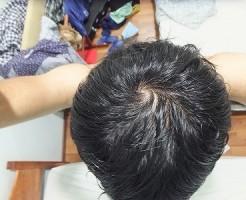AGA治療開始3ヵ月後の頭頂部ハゲ:てっぺんハゲ