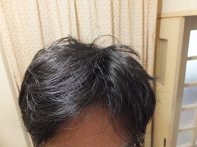 1週間シャンプーしないでお湯のみで洗った髪の毛
