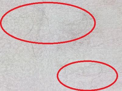AGA(男性系脱毛症)による抜け毛:タオル