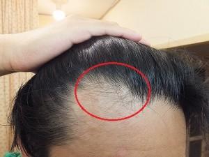 AGA治療開始4か月後のM字ハゲ部分の写真