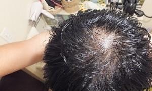 運動後,汗でべとべとになった髪:薄毛,ハゲが目立ち恥ずかしい