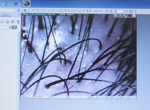 AGA進行前の髪の毛の毛穴:マイクロスコープで確認