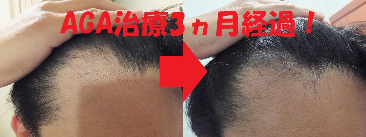 AGA治療前&3か月後比較:M字ハゲ