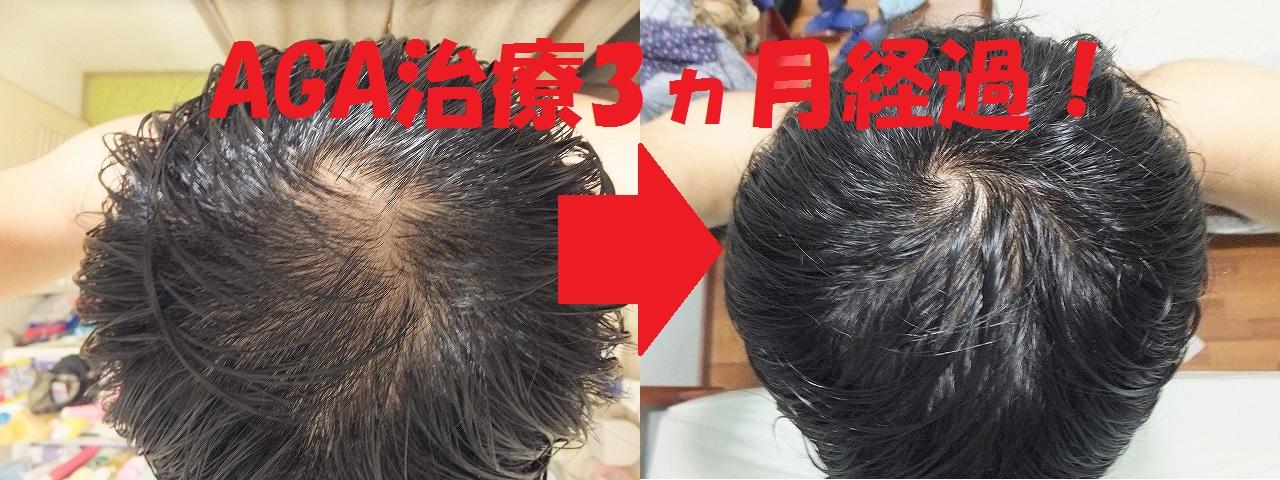 AGA治療前&3か月後比較:てっぺんハゲ