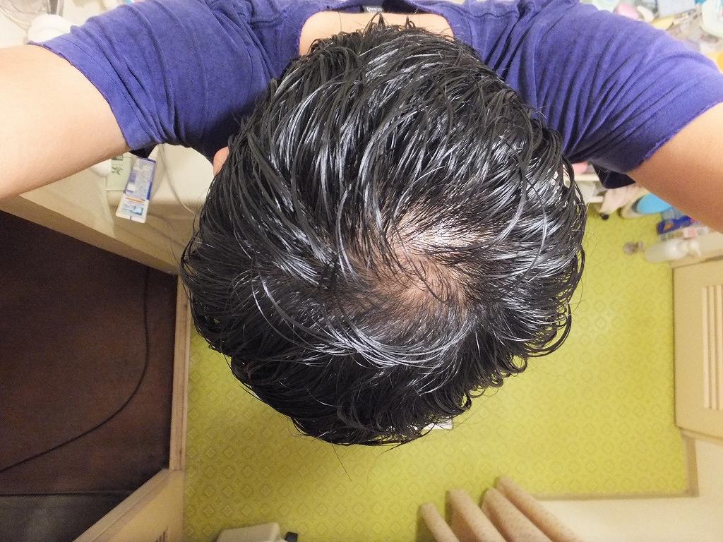 28歳から始まった抜け毛、AGAにより34歳で見事ハゲました