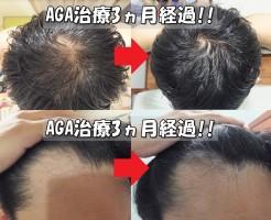 AGA治療開始前と3ヵ月後比較 てっぺんハゲ&M字ハゲ