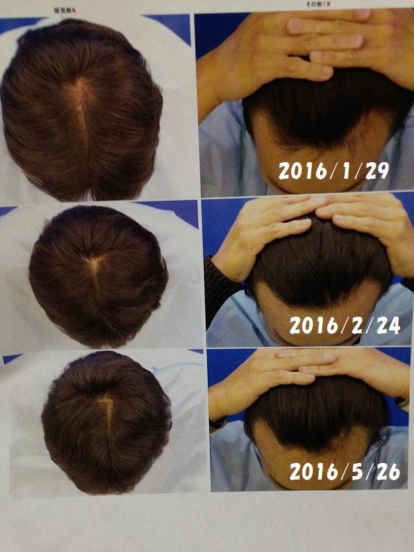 ヘアメディカルでのAGA治療経過:写真