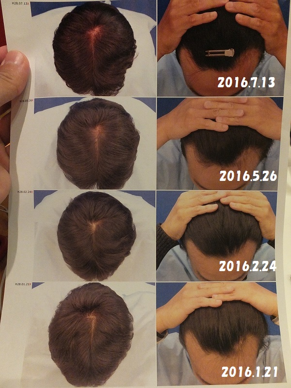 AGA治療結果写真比較:ヘアメディカル:東京メンズヘルスクリニック