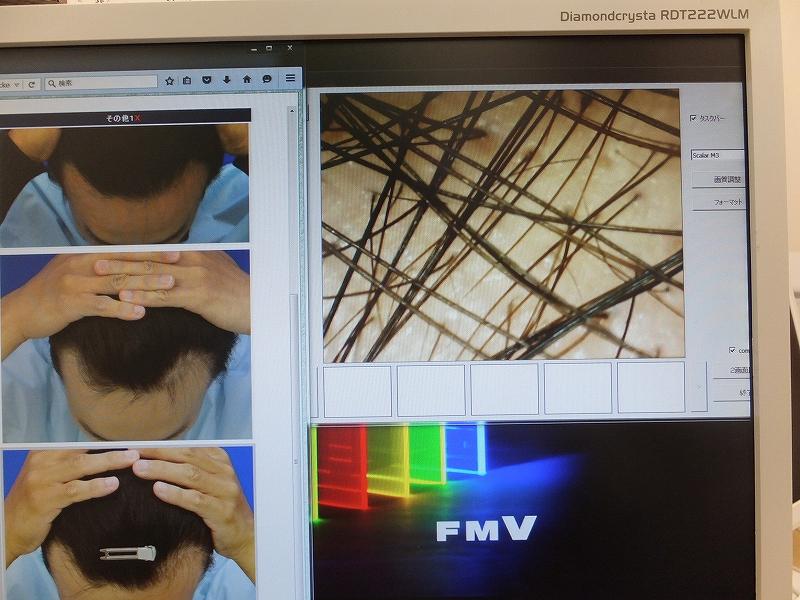 AGA治療で髪の毛が濃くなったてっぺんハゲの写真:マイクロスコープ