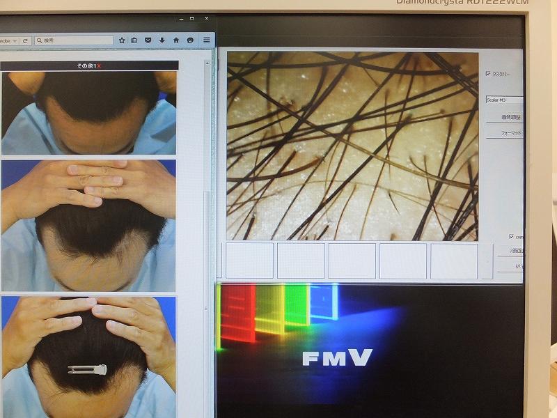 AGA治療中のM字ハゲ部分のアップ画像:マイクロスコープ