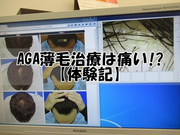 AGA薄毛治療は痛い?:体験記