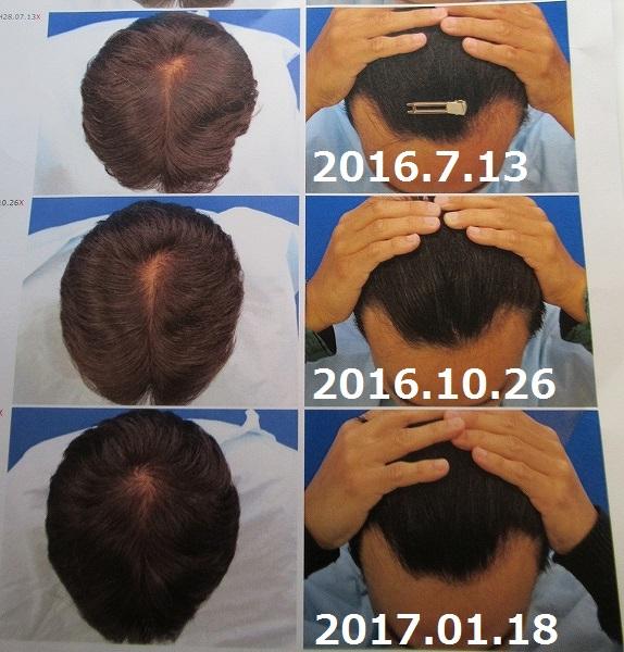 AGA治療1年4か月後の経過写真