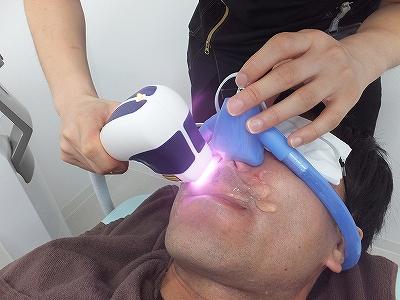 AGA治療もできるゴリラクリニックでヒゲ脱毛挑戦中!