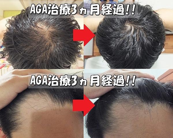 AGA治療開始前と3ヵ月後 てっぺんハゲ&M字ハゲ