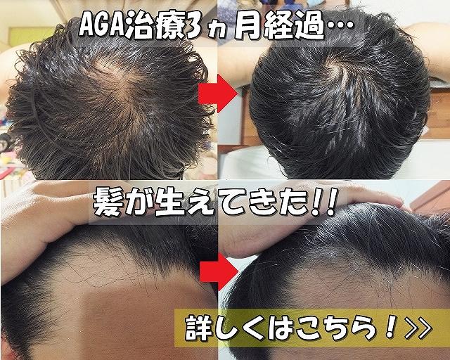 AGA治療開始前と3ヵ月後比較写真