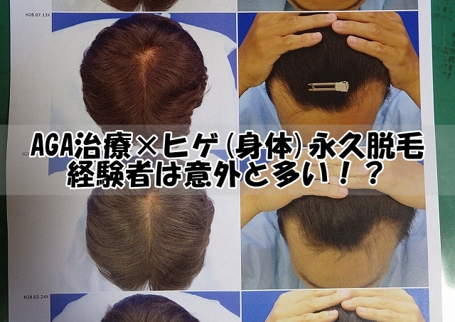 AGA薄毛治療×ヒゲ(身体)永久脱毛経験者は意外と多い!?