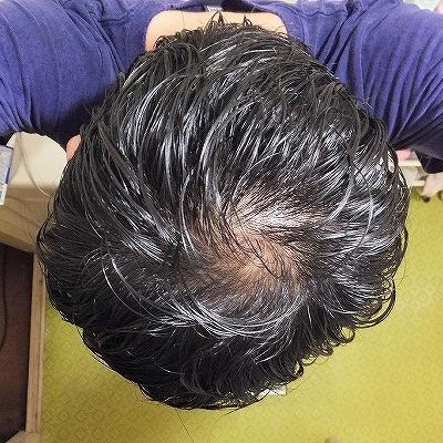 てっぺん・頭頂部ハゲ・34歳