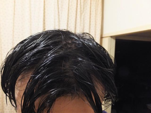 汗で髪が濡れひどいM字ハゲ