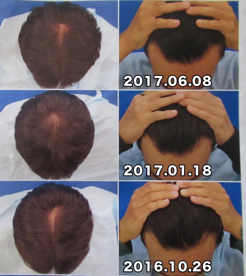 過去3回分の比較写真:AGA治療