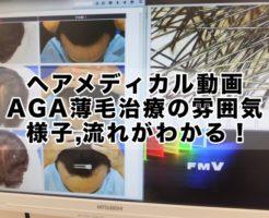 ヘアメディカル動画 AGA薄毛治療の雰囲気,様子,流れがわかる!