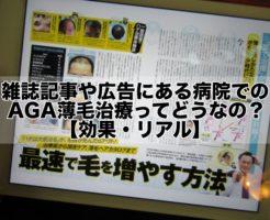 雑誌記事や広告にある病院でのAGA薄毛治療ってどうなの?【効果・リアル】