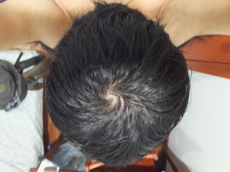 AGA薄毛治療3ヶ月後のてっぺんハゲの様子