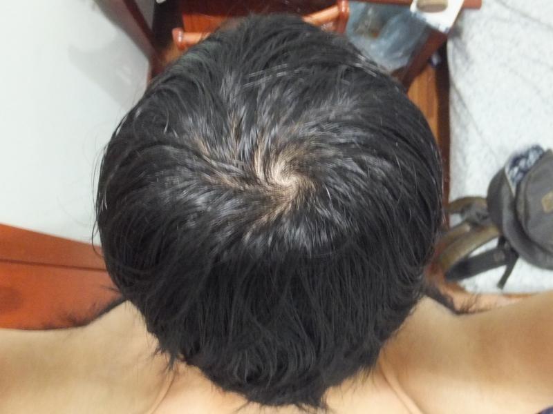 AGA薄毛治療3ヶ月後のてっぺんハゲ